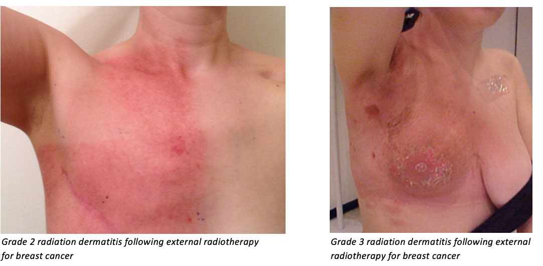 Radiation Dermatitis Repoceuticals